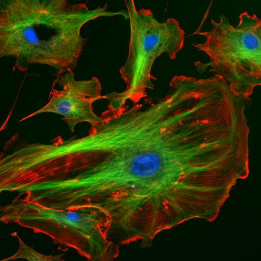 Fungsi Protein dalam Sel dan Tubuh Manusia